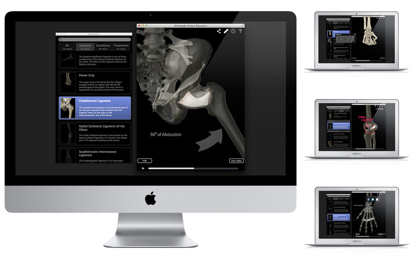 Orthopedic Patient Education screenshot 2 - In the main window you can view 3D representations for different affections.