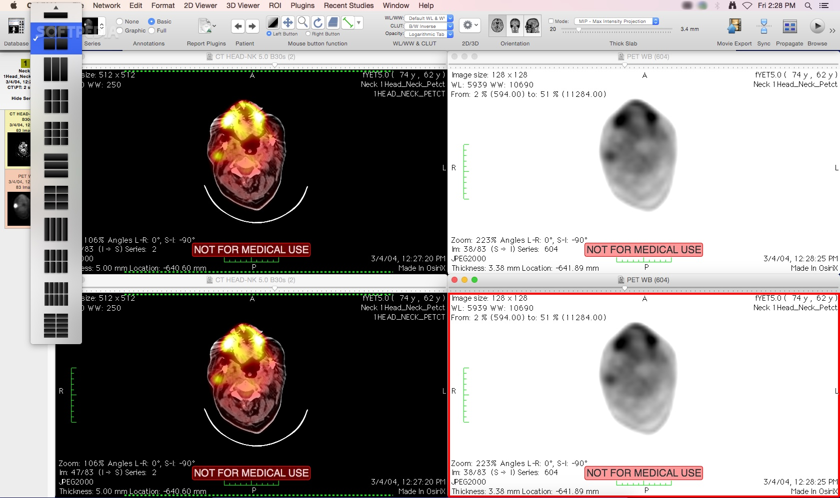 osirix 64 bit extension crack