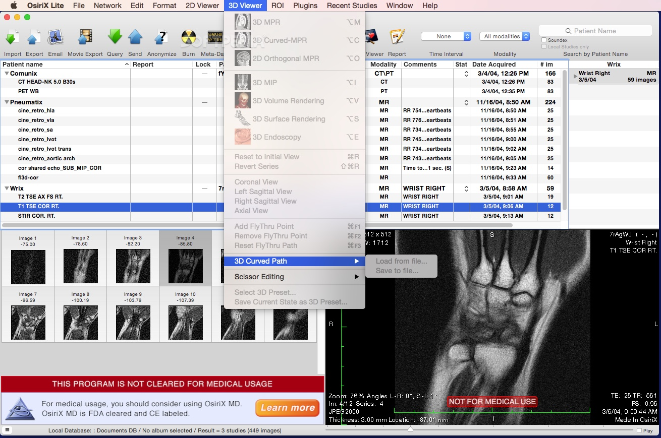 OsiriX MD Mac 10 0 5 - Download